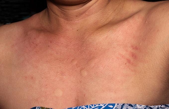 Ein Hautausschlag im Gesicht wird von Medizinern auch als Exanthem bezeichnet. Damit meint man einen Ausschlag, der sich in Form von Pusteln, Flecken oder Bläschen, manchmal auch Knötchen zeigt und meist über mehrere Tage oder gar Wochen anhält.