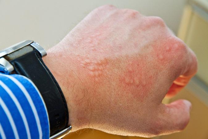 Häufig wird Ausschlag durch Allergien verursacht. Dazu gehört zum Beispiel die Kontaktallergie. Verwenden Sie beispielsweise eine Creme, die für Sie unverträgliche Inhaltsstoffe enthält, fängt Ihre Haut an zu jucken, schwillt an, nässt oder rötet sich. Allergene können Metalle, Konservierungs- oder Duftstoffe sein. (#01)
