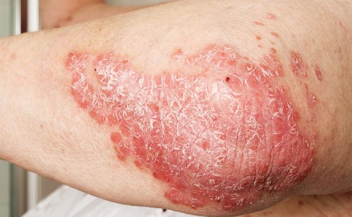 Zu den Hautkrankheiten gehört außerdem die chronische Schuppenflechte. (#05)