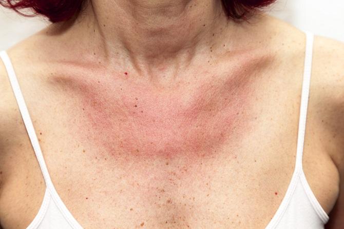 Eine andere Form der Sonnenallergie (Polymorphe Lichtdermatose) ist die Mallorca-Akne. Die Haut reagiert, wenn die durch Sonnenlicht gebildeten Substanzen auf Fette, Emulgatoren oder Wachse treffen. Diese sind in Kosmetika wie Sonnenschutzcreme und im körpereigenen Talg zu finden. Es entsteht juckender Ausschlag. (#02)