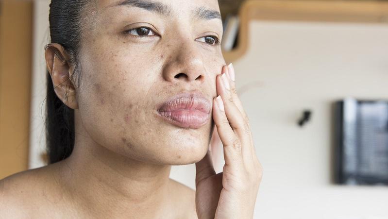 Im Gegensatz zu Hautkrankheiten sind durch Infektionen bedingte Exantheme ansteckend. Beobachten Sie das Erscheinungsbild Ihres Gesichtsausschlags genau. (#01)