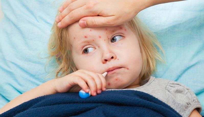 Weit verbreitet als Ursache für einen solchen Ausschlag sind aber auch virale Erkrankungen. Dazu gehören viele Kinderkrankheiten, welche die meisten Menschen bereits in jungem Alter durchleben und die deshalb bei Hautausschlag zu einem späteren Zeitpunkt im Leben als Ursache ausgeschlossen werden können. (#01)