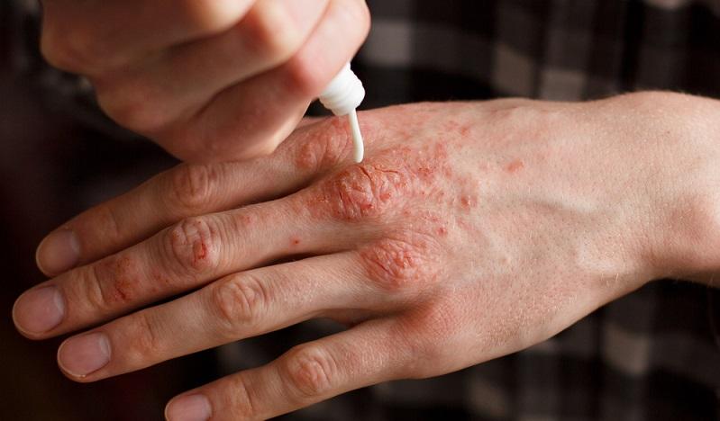 Hautausschlag durch Allergie ist recht weit verbreitet, es gibt aber auch einige seltenere, weniger verbreitete Autoimmunkrankheiten, die sich durch einen Ausschlag äußern. (#02)