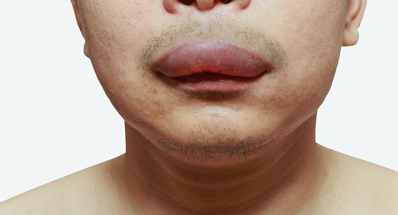 Eine allergische Reaktion verläuft nicht immer gleich. Stattdessen unterscheiden Mediziner in vier verschiedene Typen. (#01)