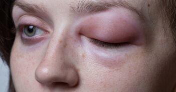 Histamin Allergie: Was bedeutet Histamin Unverträglichkeit?