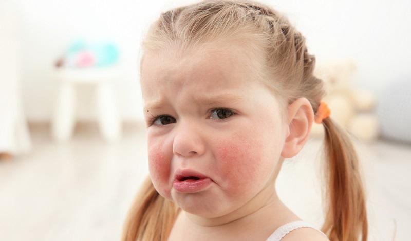 Die Allergiker leiden unter Neurodermitis, Kontaktallergien, allergischem Schnupfen und Asthma. Vielfach ist der Leidensdruck sehr hoch. Ein Allergiekalender informiert. (#01)