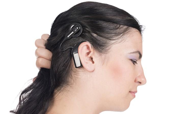 Ein Cochlea Implantat besteht aus zwei Teilen. Einem internen und einem externen Teil. Das externe Teil ist nach außen hin sichtbar, während das interne Teil implantiert wird. (#1)