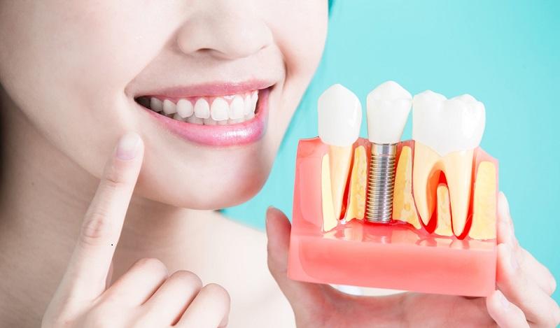 Es ist verständlich, dass die meisten Patienten nicht begeistert sind, wenn der Zahnarzt ihnen mitteilt, dass eine Wurzelspitzenresektion notwendig wird. (#04)