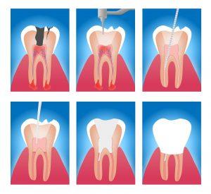 Voraussetzung für die Durchführung einer Wurzelresektion ist, dass der betroffene Zahn ansonsten erhaltungswürdig ist. (#01)