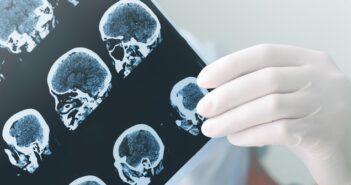 Apallisches Syndrom: Wenn plötzlich alles anders ist
