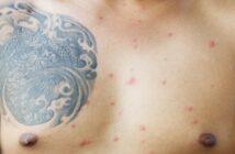 Hautausschlag am Oberkörper: Ausschlag an Brust & Rücken