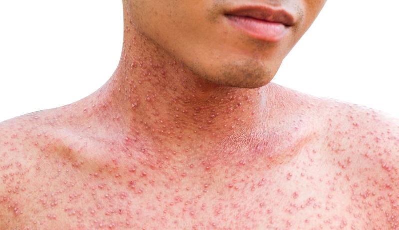 Als größtes Organ in unserem Körper ist die Haut mit Schutzfunktionen ausgestattet. Ein Hautausschlag ist ein Signal dafür, dass etwas nicht stimmt.Als größtes Organ in unserem Körper ist die Haut mit Schutzfunktionen ausgestattet. Ein Hautausschlag ist ein Signal dafür, dass etwas nicht stimmt.