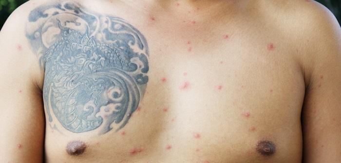 Hautausschlag oberkörper
