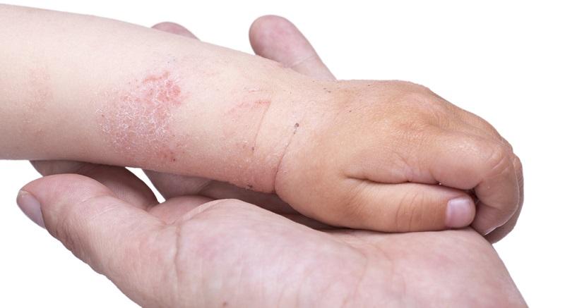 Menschen, die am atopischen Ekzem leiden, haben generell eine sehr trockene und empfindliche Haut. Häufig ist sie gerötet.
