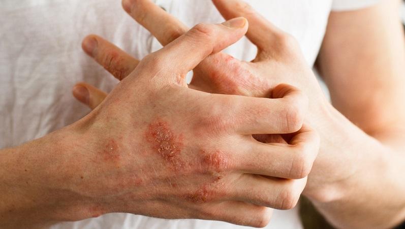 Die Symptome der Neurodermitis können das Leben schwer beeinträchtigen. Wenn die Haut ständig juckt, führt das zu einer erheblichen Beeinträchtigung der Lebensqualität.