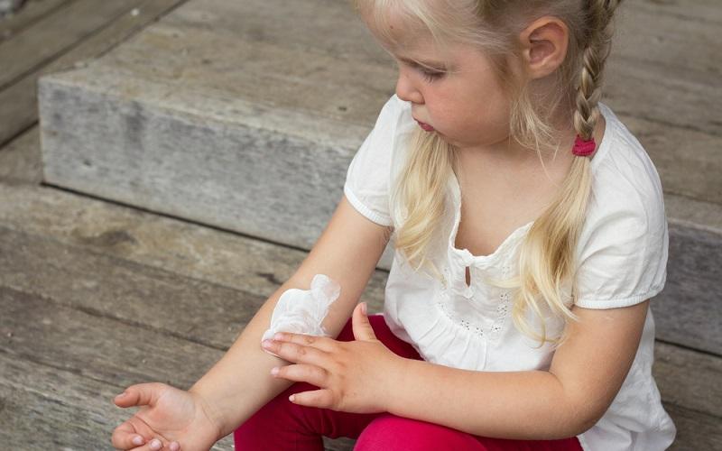 Die Behandlung des atopischen Ekzems ohne Juckreiz läuft grundsätzlich ähnlich ab wie beim gewöhnlichen Krankheitsbild.