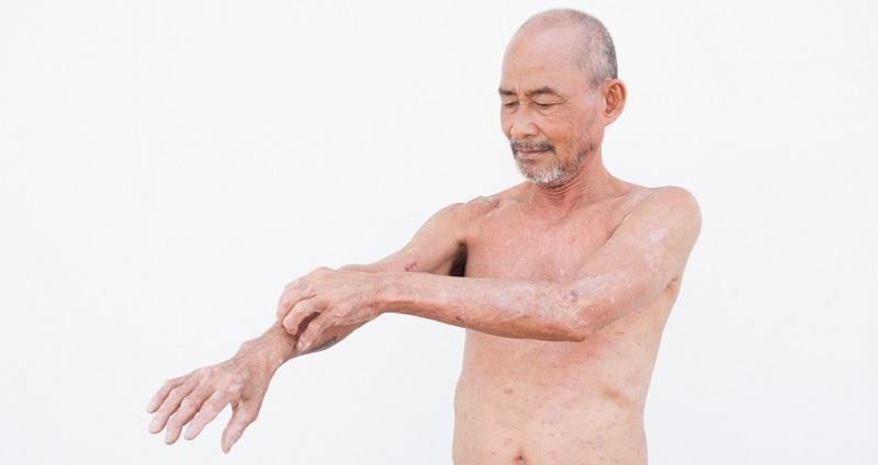 Wenn der Juckreiz nur gelegentlich auftritt und nicht allzu stark ausgeprägt ist, dann kann es sich bei der Hautkrankheit durchaus um Neurodermitis handeln.