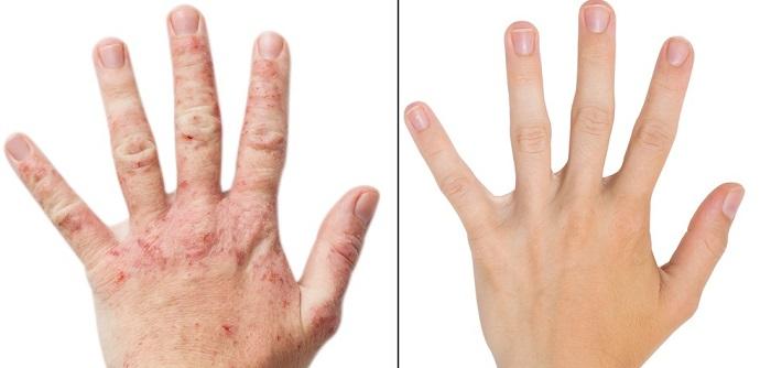 Neurodermitis: Symptome & Behandlung