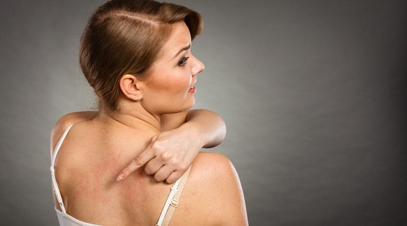 Ein plötzlicher Hautausschlag wird häufig als Nesselsucht diagnostiziert. Der medizinische Name dieser Krankheit lautet Urtikaria. Dieser geht auf die Brennnessel zurück, deren wissenschaftlicher Name Urtica lautet.