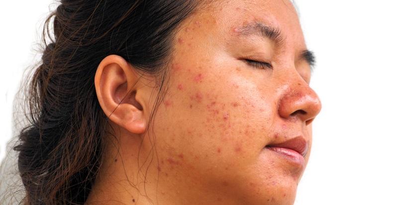 Der Begriff Hautausschlag ist ein Sammelbegriff für mehrere verschiedene Symptome, die sich auf der Oberfläche der Haut bemerkbar machen.