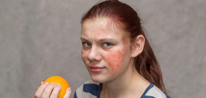 Plötzlicher Hautausschlag: Wenn es plötzlich juckt!