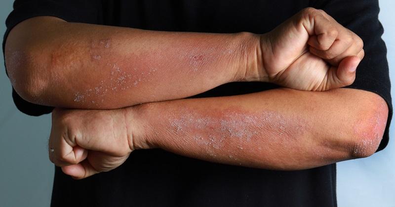 Ein Auslöser für Hautausschlag an den Beinen oder Armen kann eine Erkrankung der Haut sein.