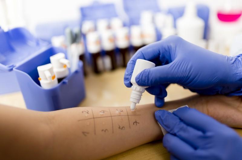 Der Dermatologe kann einen Allergietest machen, um der Ursache für die roten Punkte auf der Haut, auf den Grund zu gehen. (#1)