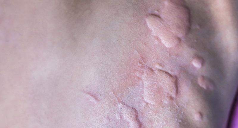 Wer beispielsweise kein Aspirin oder Penicillin verträgt oder wer allergisch auf Sulfonamide, Lidocain und Codein reagiert, ist prädestiniert für Dermographismus-Schübe.