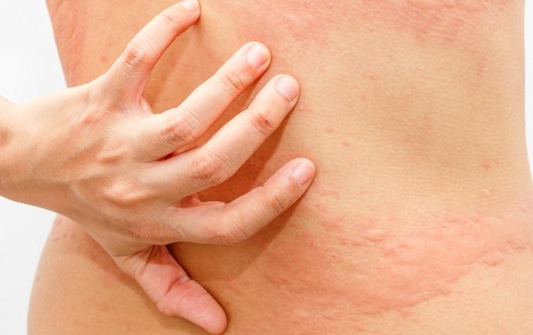 Bis heute wissen die Dermatologen nicht genau, wo die Auslöser für einen Dermographismus liegen.