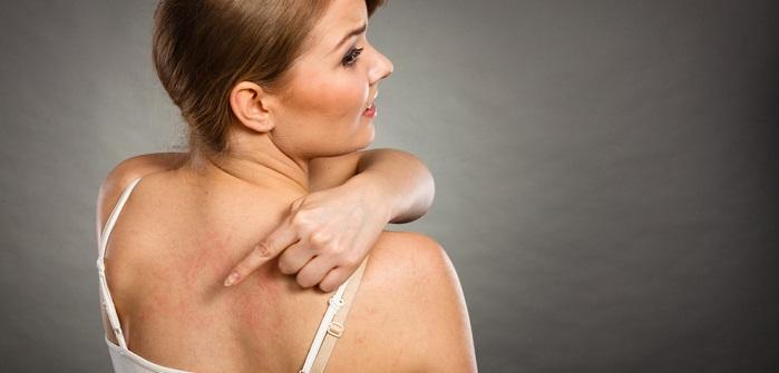 Dermographismus: Ursachen, Symptome & Behandlung