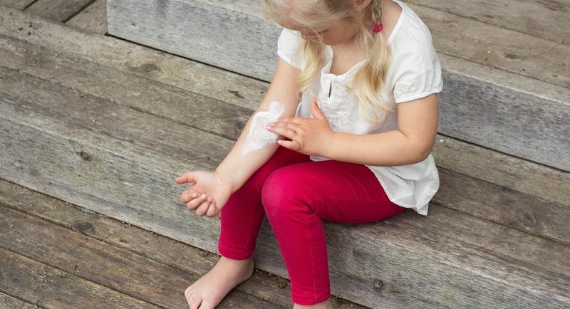 Längst sind nicht nur Kinder von den störenden Hautreaktionen betroffen, die sich vor allem im Sommer oder auch beim Tragen zu warmer Kleidung zeigen.
