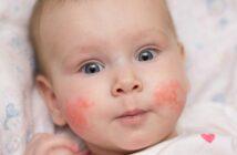 Neurodermitis im Gesicht: Ursachen, Symptome & Behandlung