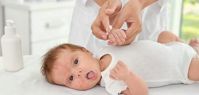 Neurodermitis beim Kleinkind: Hilfe gegen den Juckreiz