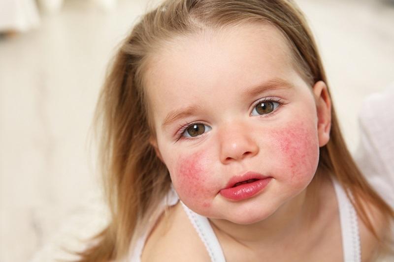Neurodamitis Kind: Das Kennen der Symptome ist ein wichtiger und guter Anfang zur Förderung einer besseren Kindergesundheit. (#01)