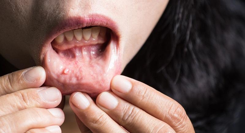 Ursachen dafür, warum sich auf der Haut die Wucherungen bilden, sind nicht wirklich bekannt. Auffällig ist, dass sie gehäuft bei Menschen vorkommen, die unter Fettleibigkeit oder sehr starken Hautfalten leiden.  ( Foto: Shutterstock-pongwit sanongboon)