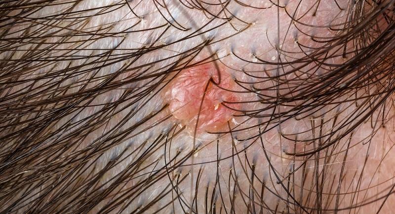 Hautwucherungen sind bei fast jedem Menschen zu finden.  ( Foto: Shutterstock- Ocskay Bence )