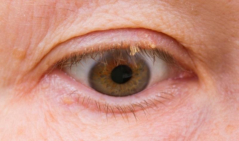 Abhängig von der Form der Hautwucherung, kann sie an verschiedenen Stellen auftreten.  (Foto: Shutterstock-  Nik Niklz)